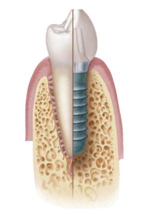 Implantes servicio de odontologia y estomatologia doctor ruiz villandiego hospital quiron donostia 2